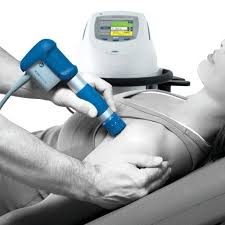 Shockwave Therapy Treatment Example Offered at Synergy Physio in London